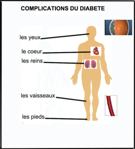 COMPLICATIONS D DIABETE FINI