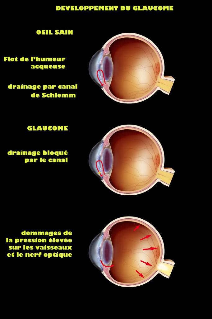 Développement du glaucome