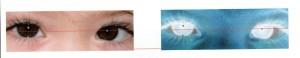 Le reflet de la lumière est décentré sur l'oeil  gauche. L'oeil droit est plus haut que l'oeil gauche