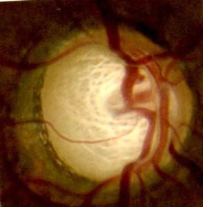 papille optique glaucome
