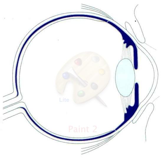 Uveites cabinet d 39 ophtalmologie du dr elgolli - Couche du globe oculaire ...